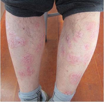皮肤缺水是牛皮癣的病因吗