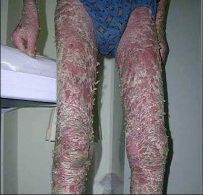 牛皮癣患者为什么要避免感冒