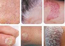 湿疹皮炎和牛皮癣有什么区别