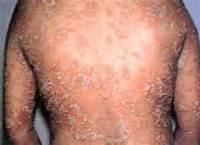 背部银屑病有什么症状