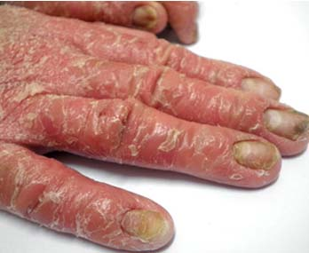 红皮病型银屑病治疗应留意什么