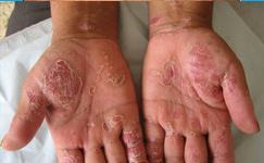 小儿患银屑病皮肤瘙痒如何护理