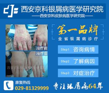冬季男性银屑病患者皮肤干燥怎么办