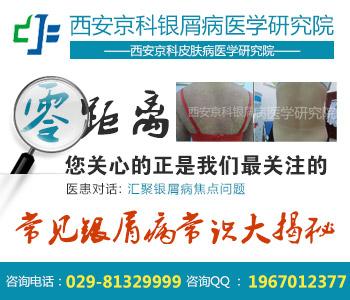 渭南市治银屑病的医院