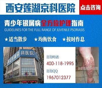 西安中医治疗牛皮癣的医院